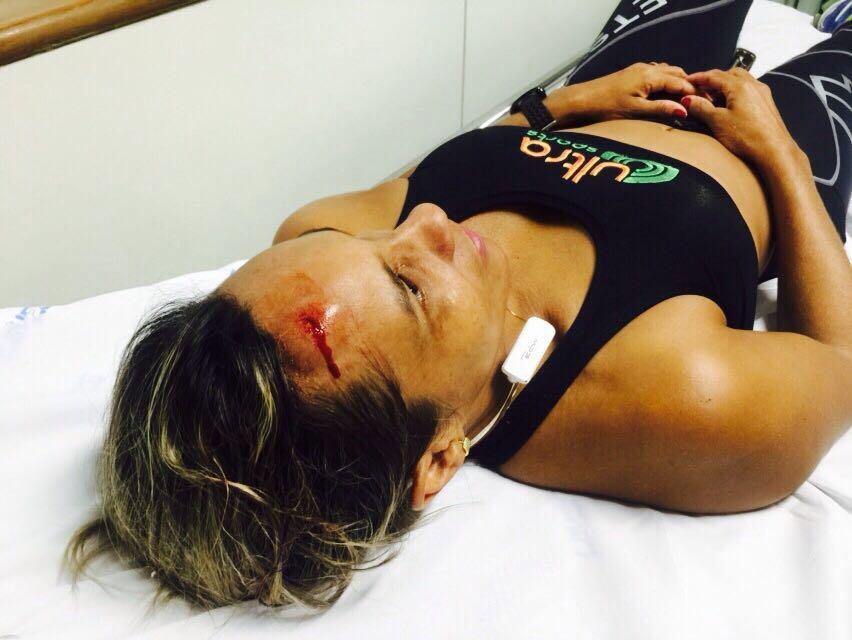 Corredora é atacada com paulada na cabeça durante treino no ...