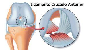 lista bolilor de genunchi artroza acută a articulației șoldului dureri acute